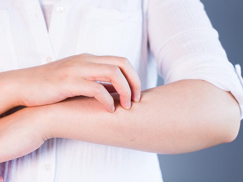 Hautkrebsvorsorge intimbereich